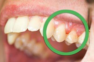 歯周病の症状 自覚症状が出始める中度